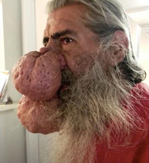 Bị 2 khối u siêu to khổng lồ mọc trên mặt, người đàn ông tuyệt vọng cầu cứu chương trình nặn mụn khét tiếng giúp đỡ - Ảnh 2.