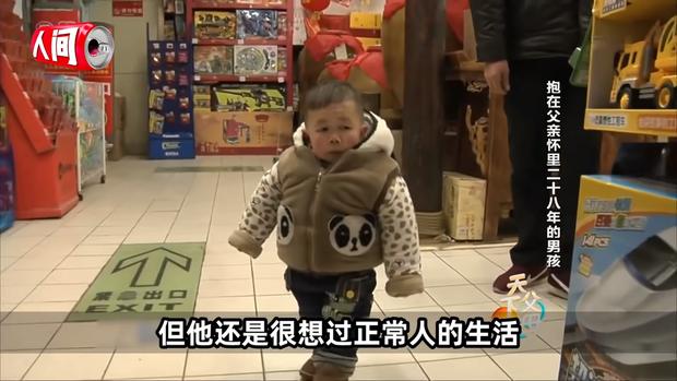 Cậu bé mắc bệnh lạ chỉ cao 68cm do ngừng phát triển từ năm 1 tuổi gây xúc động với cuộc sống và diện mạo hiện tại sau hơn 30 năm  - Ảnh 1.