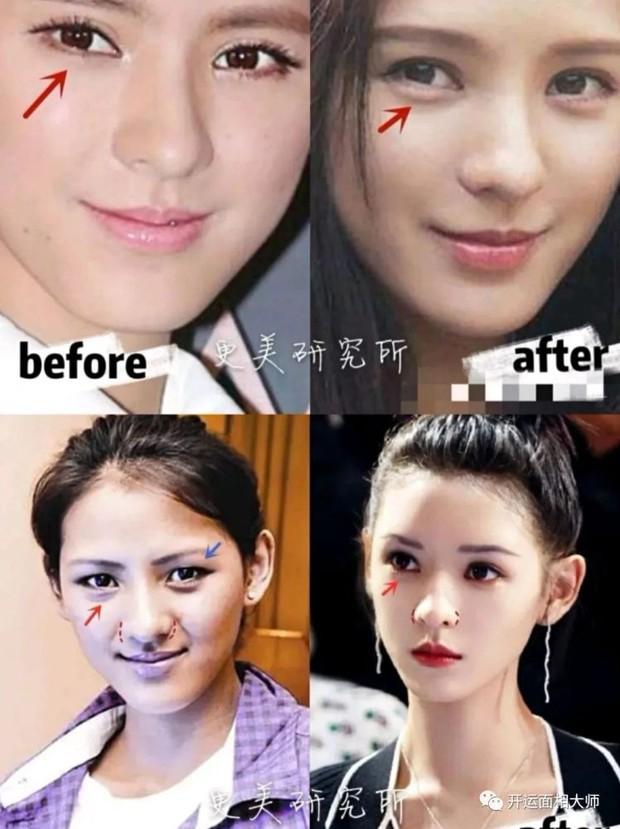 Tình cũ của thiếu gia giàu nhất Trung Quốc bị tố sửa cả mặt, từ nhan sắc bình thường tới nữ thần visual đẳng cấp xứ Trung - Ảnh 6.