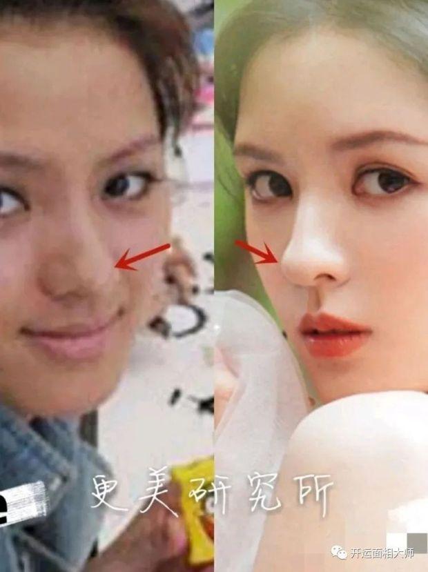 Tình cũ của thiếu gia giàu nhất Trung Quốc bị tố sửa cả mặt, từ nhan sắc bình thường tới nữ thần visual đẳng cấp xứ Trung - Ảnh 7.