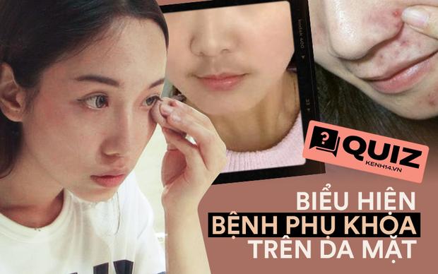 Quiz: Phụ nữ mắc bệnh phụ khoa thường có 4 biểu hiện trên khuôn mặt, nếu bạn không có thì xin chúc mừng - Ảnh 1.