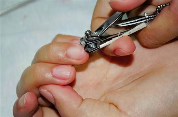 Cắt móng tay, móng chân thành hình tròn hay hình vuông? Bác sĩ giải thích mới bật ngửa, hóa ra trước giờ chúng ta vẫn làm sai cách - Ảnh 1.