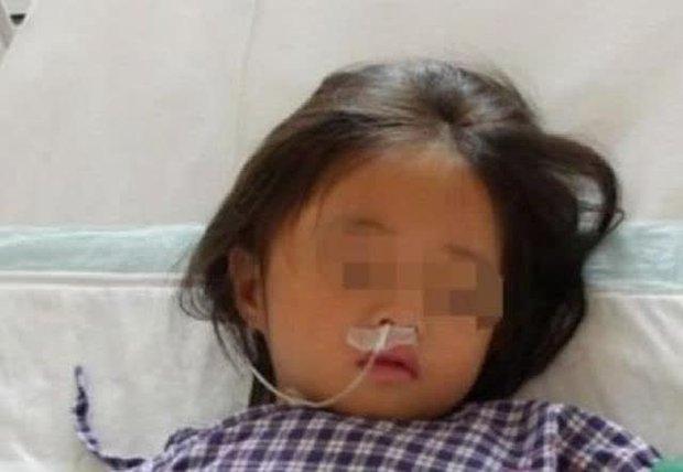 Bé gái 7 tuổi nhập viện trong tình trạng suy đa tạng chỉ vì bố mẹ phạm sai lầm khi chế 1 món nhiều người yêu thích - Ảnh 1.