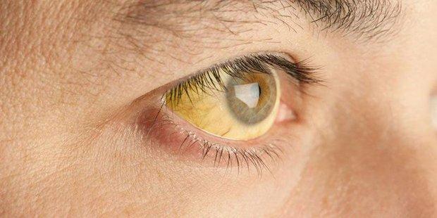 Người có gan kém rất dễ gặp 4 vấn đề ở vùng đầu, nếu có 1 cũng phải chú ý ngay - Ảnh 2.