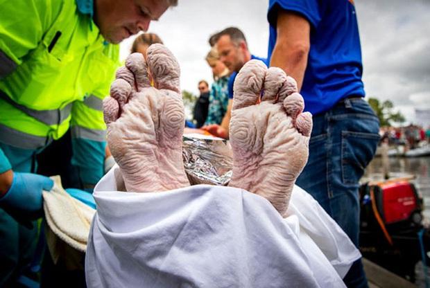 Không ai có thể tưởng tượng đây là bàn chân của VĐV bơi lội Olympic cùng câu chuyện nhói lòng đằng sau - Ảnh 8.