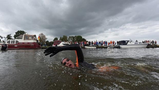Không ai có thể tưởng tượng đây là bàn chân của VĐV bơi lội Olympic cùng câu chuyện nhói lòng đằng sau - Ảnh 5.