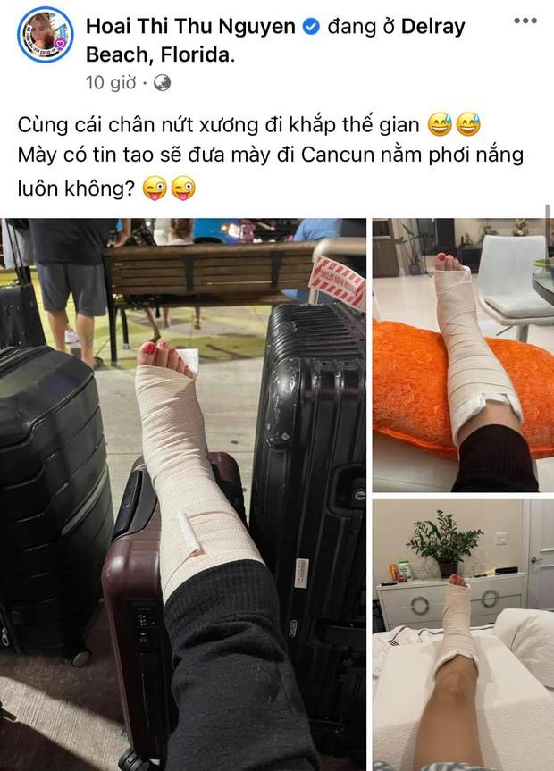 Hoa hậu Thu Hoài gặp chấn thương nghiêm trọng ở Mỹ, Hari Won - Mai Hồ cùng dàn sao Việt đồng loạt lo lắng hỏi thăm - Ảnh 2.