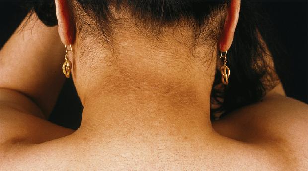 Người có tuổi thọ ngắn thường có 4 cái đen trên cơ thể, nếu có dù chỉ 1 cũng phải dè chừng - Ảnh 2.