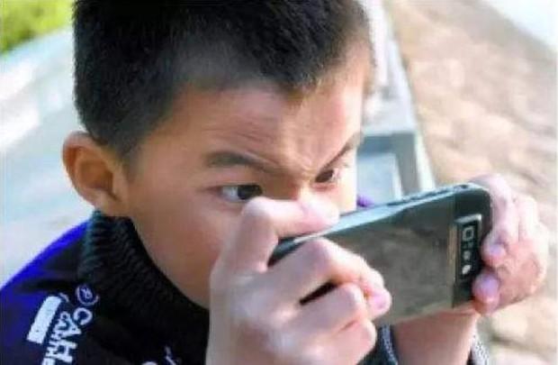 Bé trai 5 tuổi mắt thâm đen, con ngươi 1 bên mắt biến mất, bị lác nghiêm trọng bởi thói quen dễ dãi của nhiều bố mẹ trẻ - Ảnh 2.