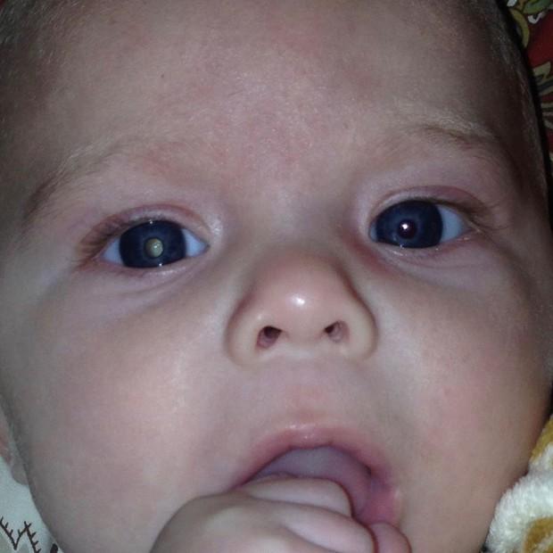Chụp ảnh con trai, bà mẹ phát hiện điều bất thường liền hoảng hốt đưa con đi bệnh viện rồi khóc ròng khi nhận kết quả - Ảnh 1.
