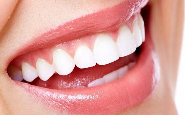 Niềng răng và bọc sứ: Cả 2 đều cải thiện nhan sắc trông thấy nhưng đâu mới là phương pháp dành cho bạn? - Ảnh 7.