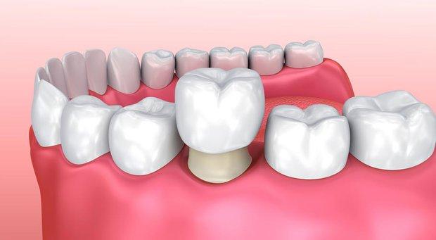 Niềng răng và bọc sứ: Cả 2 đều cải thiện nhan sắc trông thấy nhưng đâu mới là phương pháp dành cho bạn? - Ảnh 6.