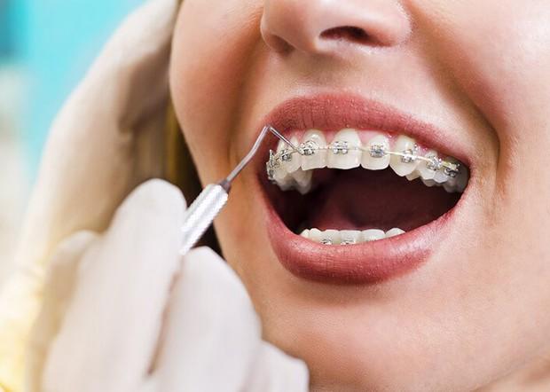 Niềng răng và bọc sứ: Cả 2 đều cải thiện nhan sắc trông thấy nhưng đâu mới là phương pháp dành cho bạn? - Ảnh 2.