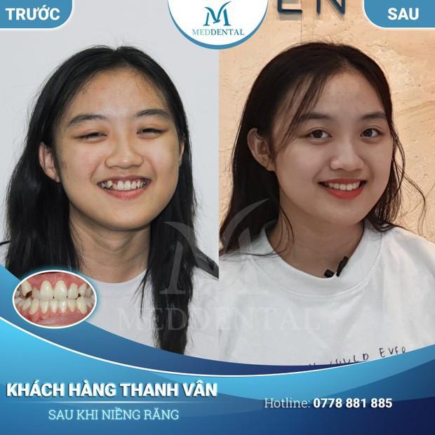 Niềng răng và bọc sứ: Cả 2 đều cải thiện nhan sắc trông thấy nhưng đâu mới là phương pháp dành cho bạn? - Ảnh 4.
