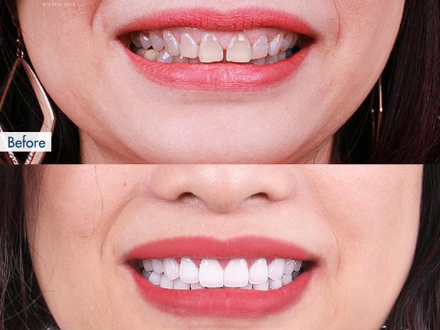Niềng răng và bọc sứ: Cả 2 đều cải thiện nhan sắc trông thấy nhưng đâu mới là phương pháp dành cho bạn? - Ảnh 8.