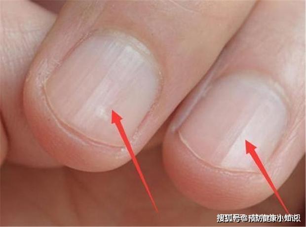 Người sở hữu lá gan khỏe mạnh sẽ có 5 biểu hiện trên bàn tay, nếu bạn có đủ cả thì xin chúc mừng - Ảnh 5.