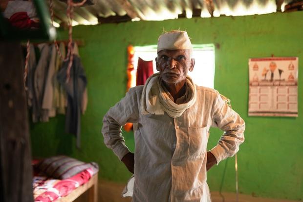 Bi kịch ai oán của những xác sống Ấn Độ: Người ta nhìn tôi như một hồn ma bóng quế - Ảnh 4.