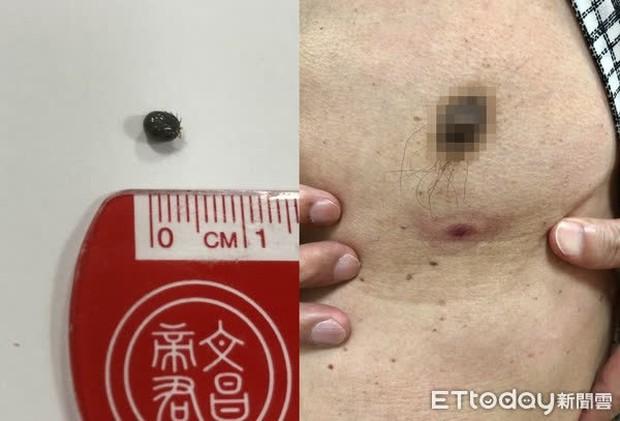 Người đàn ông bị sưng tấy và đau nốt ruồi trên ngực, lên bàn mổ bác sĩ mới phát hiện sự thật kinh hoàng: nó là sinh vật sống và có 8 chân - Ảnh 1.
