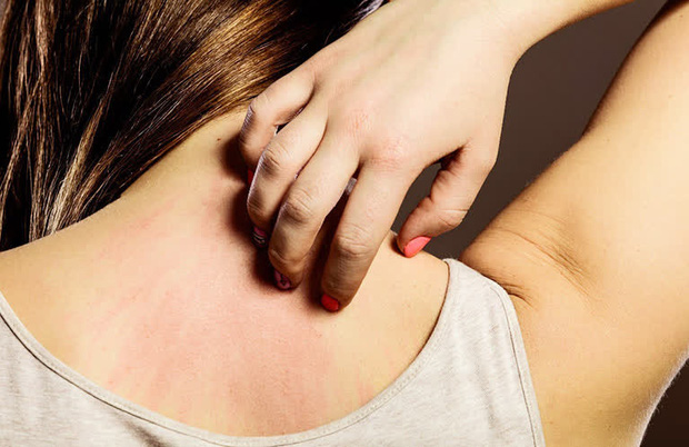 4 kiểu ngứa ngoài da là tín hiệu cầu cứu từ các cơ quan nội tạng, đừng bỏ qua nếu không muốn sớm vào phòng cấp cứu - Ảnh 2.