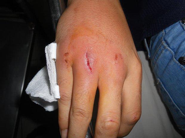 4 dấu hiệu trên bàn tay cảnh báo đường huyết cao nhưng thường bị người trẻ bỏ qua, không muốn bị tiểu đường thì nên kiểm tra ngay - Ảnh 3.