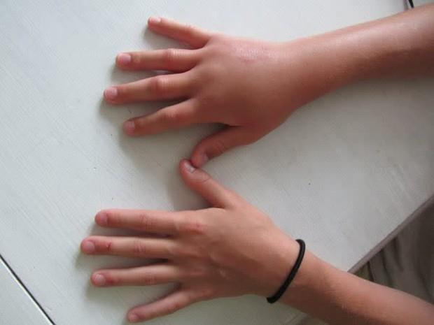 4 dấu hiệu trên bàn tay cảnh báo đường huyết cao nhưng thường bị người trẻ bỏ qua, không muốn bị tiểu đường thì nên kiểm tra ngay - Ảnh 4.
