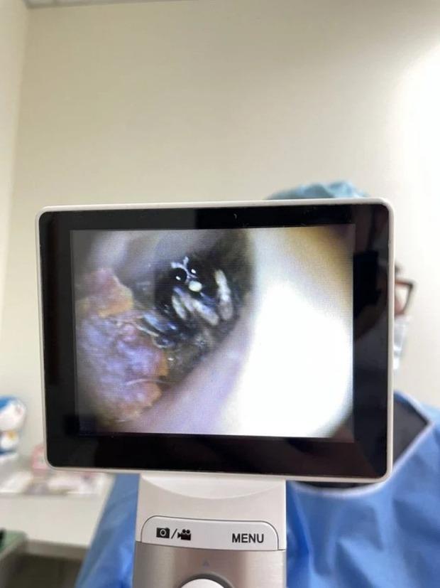 Cô gái bị ngứa ngáy, bên trong tai luôn có tiếng động lạ, đi nội soi thì bác sĩ phát hiện 8 con mắt đang thao láo nhìn ra - Ảnh 1.