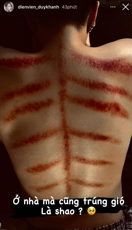 1 sao nam Vbiz gây hoang mang khi lộ lưng chi chít vết đỏ bầm, nguyên nhân nhanh chóng được chính chủ hé lộ - Ảnh 2.