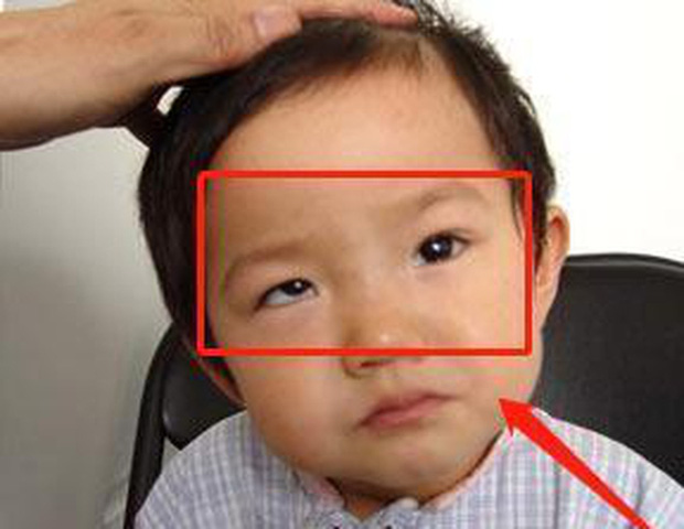 Bé trai 5 tuổi mắt thâm đen, con ngươi 1 bên gần như biến mất, tất cả chỉ vì thói quen độc hại này - Ảnh 1.