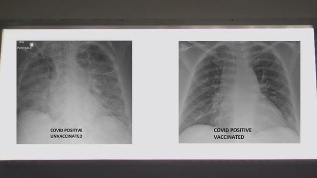 So sánh ảnh chụp phổi của bệnh nhân COVID-19 đã tiêm và chưa tiêm vaccine, phát hiện điều kinh ngạc - Ảnh 4.