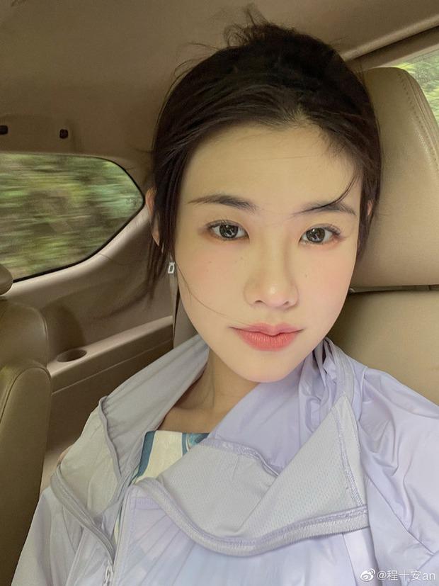 Cô gái 25 tuổi phải cắt bỏ một phần tử cung vì khối u buồng trứng ác tính, nguyên nhân xuất phát từ thói quen của nhiều người trẻ - Ảnh 2.