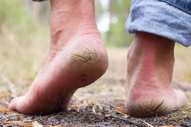 8 dấu hiệu trên bàn chân cảnh báo cơ thể bạn đang lão hoá dần - Ảnh 1.