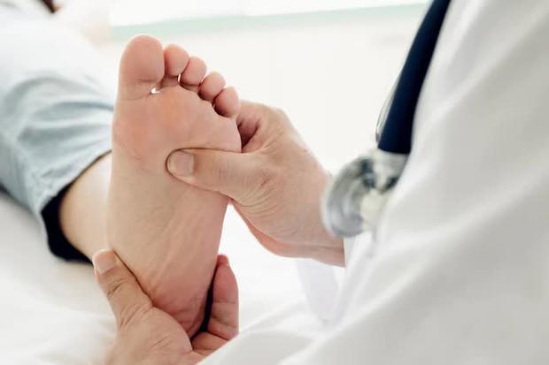8 dấu hiệu trên bàn chân cảnh báo cơ thể bạn đang lão hoá dần - Ảnh 4.