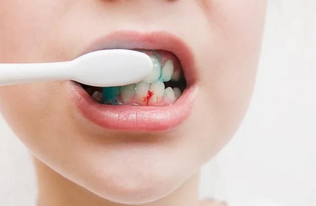 5 dấu hiệu ở miệng cho thấy gan đang bị tổn thương, nếu có dù chỉ 1 cái bạn cũng nên đi khám ngay - Ảnh 1.