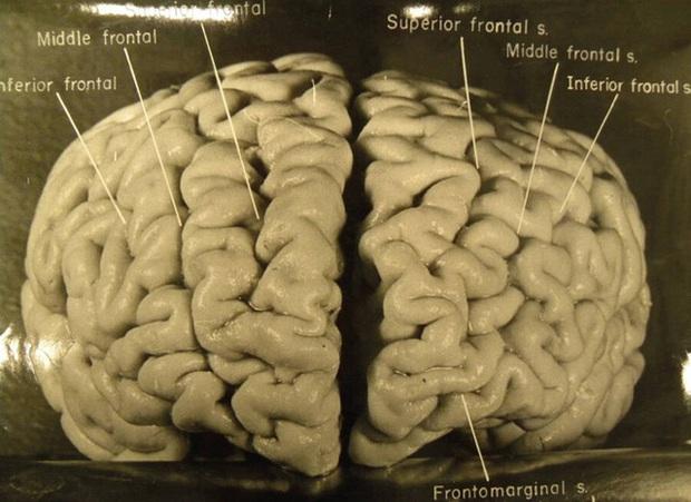 Chuyến phiêu lưu của bộ não Albert Einstein, người có IQ cao nhất thế giới sau khi nó bị đánh cắp khỏi cơ thể - Ảnh 1.