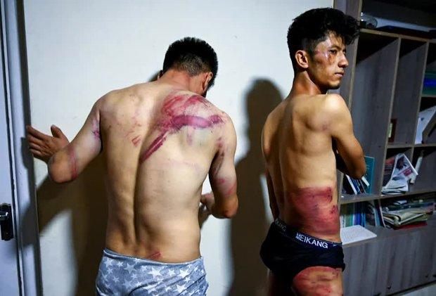 Hai phóng viên Afghanistan toàn thân đầy vết thương kinh hoàng do Taliban tra tấn vì đi lấy tin: Tôi cứ nghĩ chúng sẽ giết tôi - Ảnh 1.