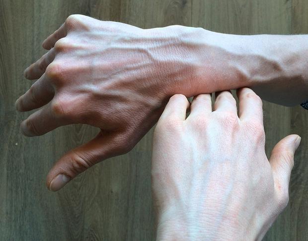Người có gan kém thường có 4 biểu hiện bất thường ở bàn tay, nếu không có thì gan vẫn rất khỏe mạnh - Ảnh 4.