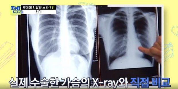 Bị netizen nghi ngờ đại tu vòng 1 ngồn ngộn, nữ hoàng gợi cảm Lee Hyori có màn đáp trả không thể nào đanh thép hơn - Ảnh 6.