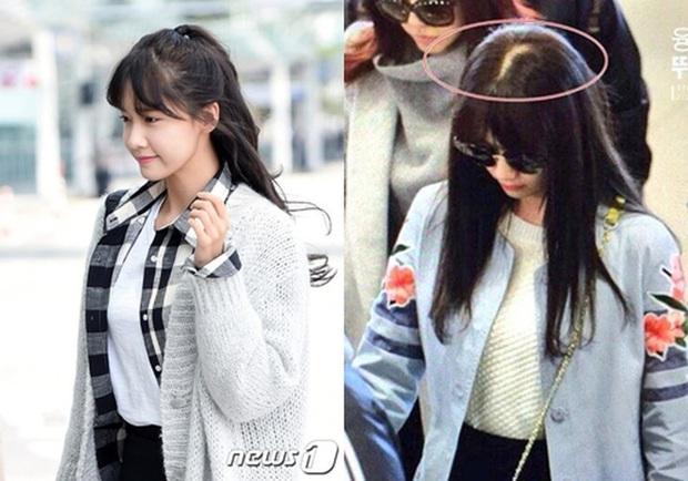 Đến hẹn lại lên, Yoona lại lộ nhược điểm chí mạng rồi! - Ảnh 3.