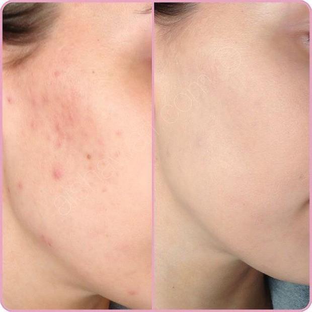 Lưu huỳnh có nhiều công dụng dưỡng da hơn bạn tưởng, nàng da mụn đặc biệt nên biết! - Ảnh 5.