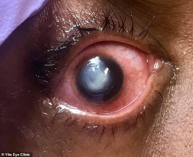 Bác sĩ chia sẻ hình ảnh kinh hoàng về mắt của bệnh nhân đeo kính áp tròng ngủ qua đêm - Ảnh 1.
