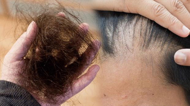 Không phân biệt nam nữ, cơ thể có 4 dấu hiệu lạ ngầm cảnh báo thận đang bắt đầu lão hóa - Ảnh 4.