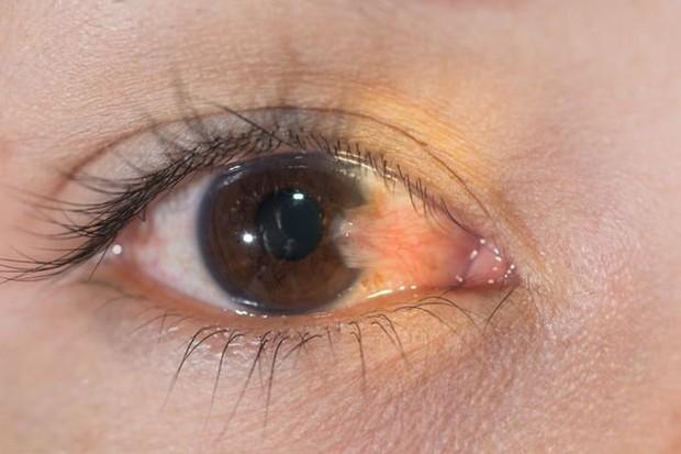 Mộng mắt bị sưng có nguy hiểm không? Điều trị mộng mắt bằng cách nào? - Ảnh 3.