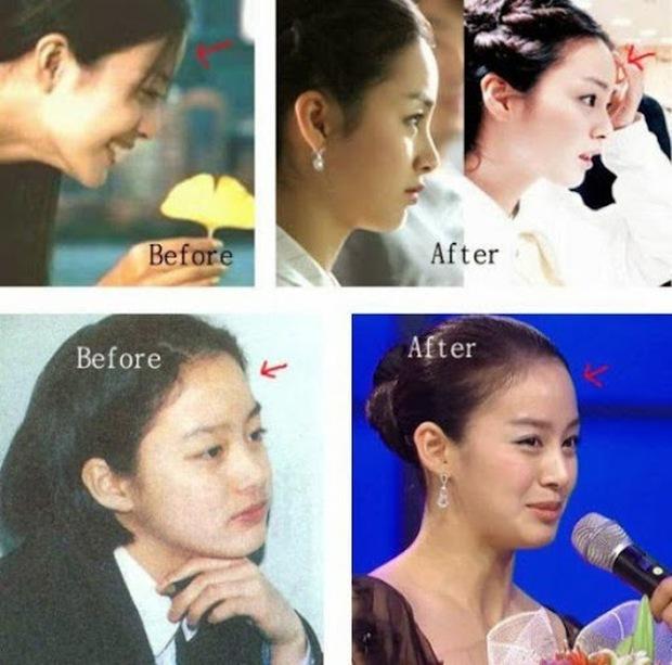 Kim Tae Hee xinh như mộng nhưng hồi xưa vẫn dính tin đồn phẫu thuật thẩm mỹ - Ảnh 4.