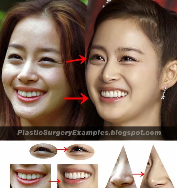 Kim Tae Hee xinh như mộng nhưng hồi xưa vẫn dính tin đồn phẫu thuật thẩm mỹ - Ảnh 3.