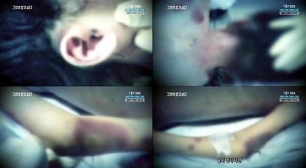 Em gái bị hành hạ đến chết, chị mang tiếng giết em lên tiếng vạch mặt mẹ kế tàn độc đẩy cuộc đời 2 đứa trẻ vào địa ngục - Ảnh 3.