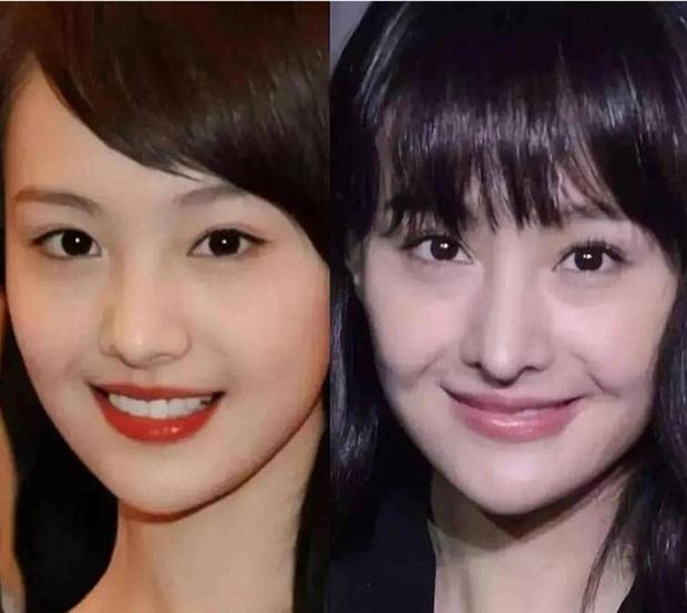 Rợn người hậu quả thẩm mỹ mũi thất bại: Trịnh Sảng đâm thủng vạn vật, Kim So Eun lồi kỳ lạ nhưng dị nhất là vụ mỹ nhân bị hoại tử - Ảnh 3.