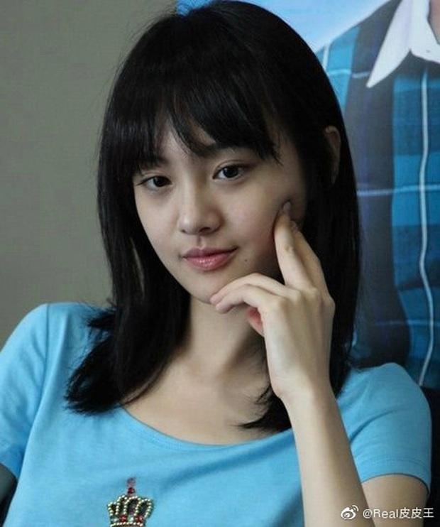 Rợn người hậu quả thẩm mỹ mũi thất bại: Trịnh Sảng đâm thủng vạn vật, Kim So Eun lồi kỳ lạ nhưng dị nhất là vụ mỹ nhân bị hoại tử - Ảnh 2.