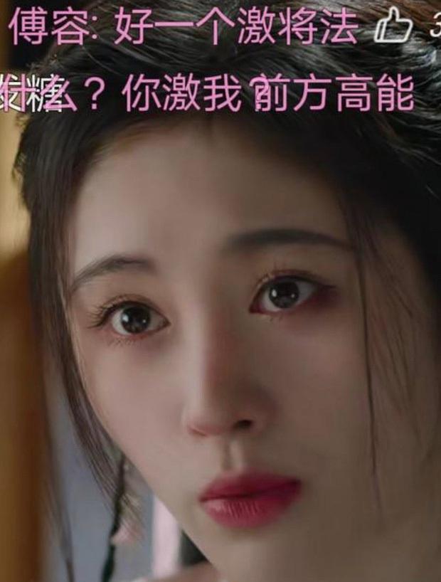 Rợn người hậu quả thẩm mỹ mũi thất bại: Trịnh Sảng đâm thủng vạn vật, Kim So Eun lồi kỳ lạ nhưng dị nhất là vụ mỹ nhân bị hoại tử - Ảnh 8.