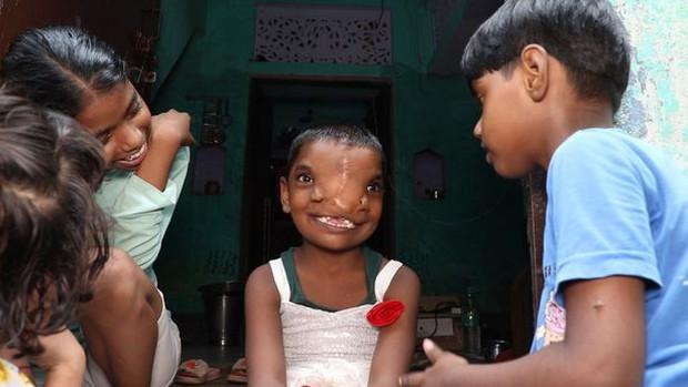 Bé gái có 2 mũi trên gương mặt dị dạng nhưng được cả vùng yêu mến, có được mời cũng không phẫu thuật thẩm mỹ vì lý do thú vị - Ảnh 2.