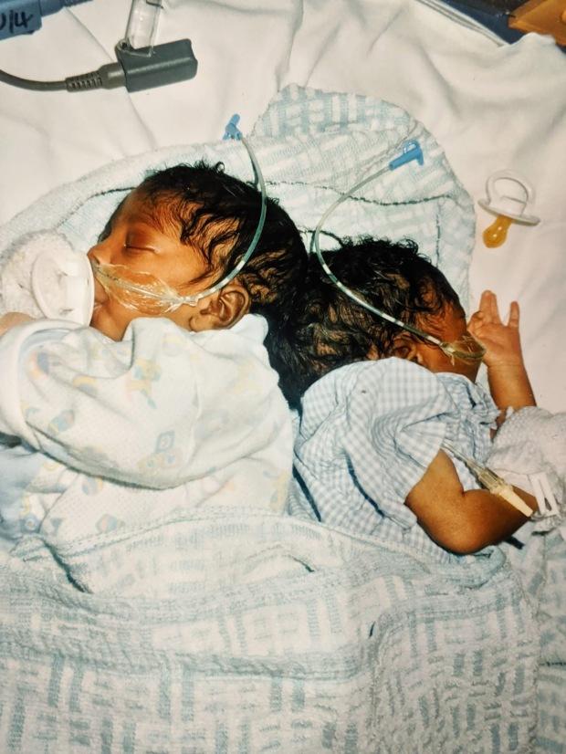 Cặp song sinh chào đời với phần xương cụt dính liền, bố mẹ cho con thực hiện ca mổ lịch sử và cuộc sống gây ngỡ ngàng sau 20 năm - Ảnh 1.